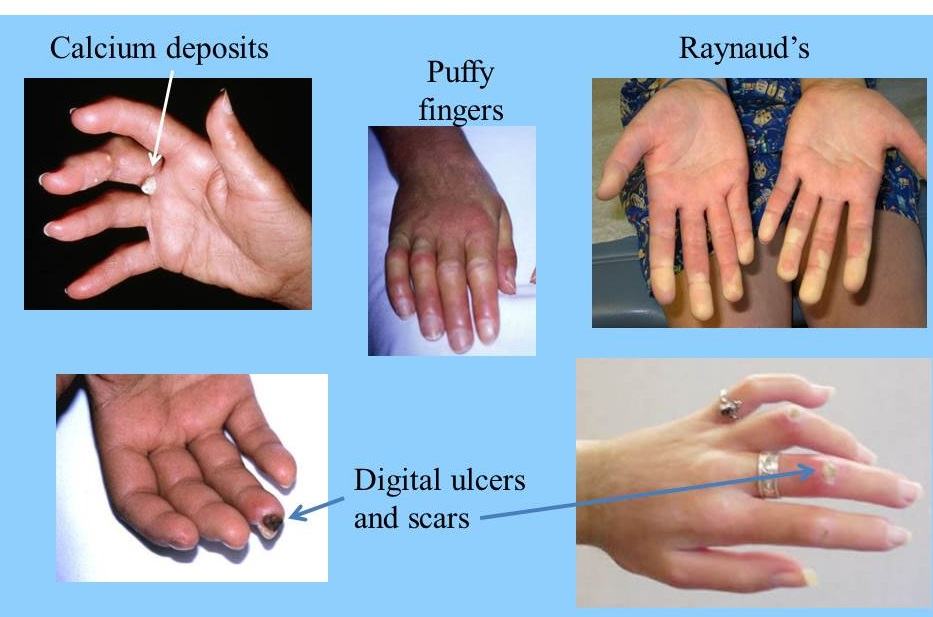 picture GERD and Scleroderma