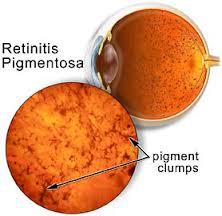 Herbal-Treatment-for-Retinitis-Pigmentosa