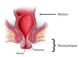 Rectal-Prolapse-Symptom-Causes-Diagnosis-and-Treatment
