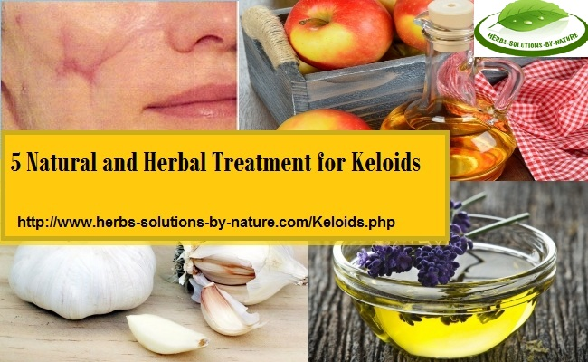 Herbal-Treatment-for-Keloids