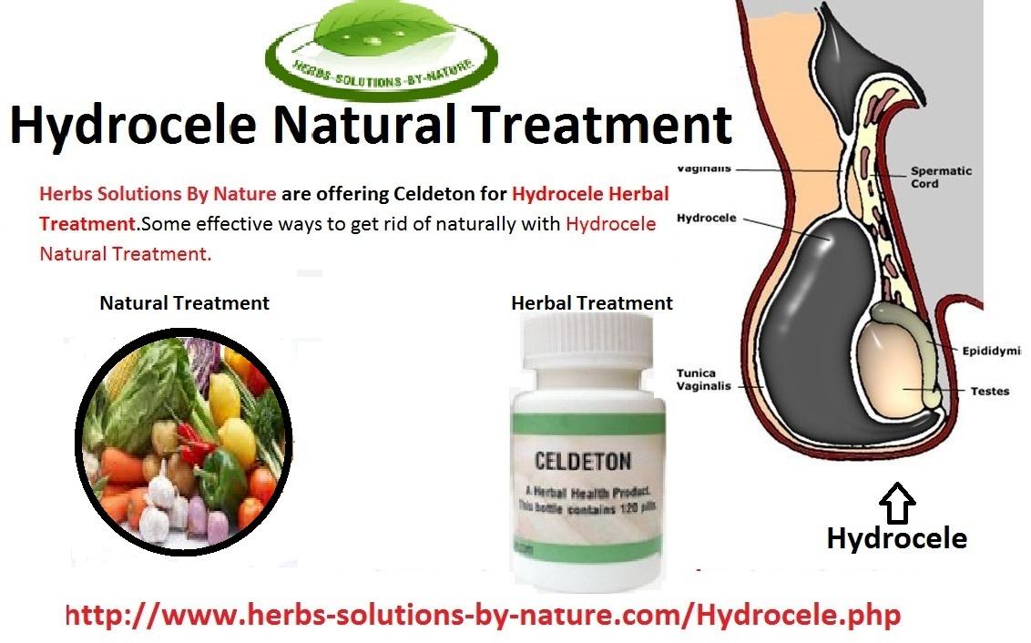 Hydrocele-Natural-Treatment