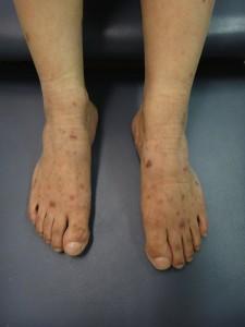 waldenstroms-macroglobulinemia