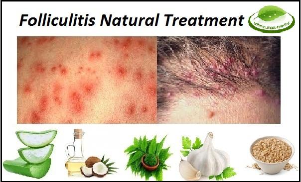 Folliculitis-Natural-Treatment
