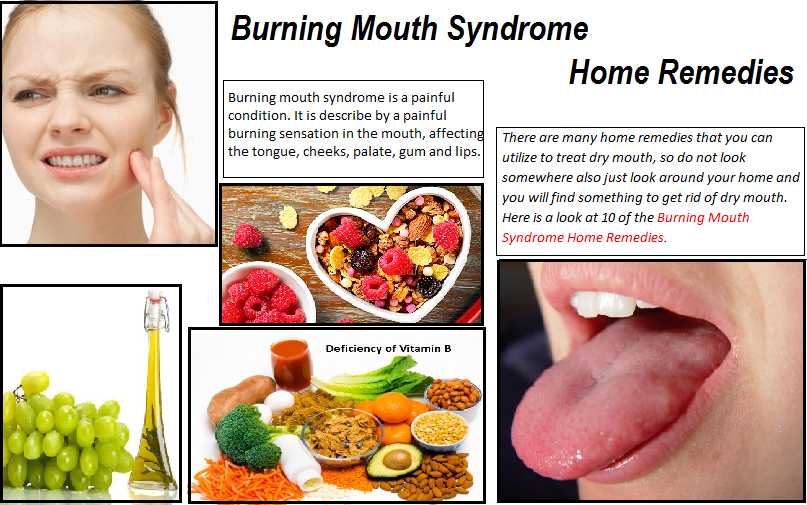 Home-Remedies-for-Burning-Mouth-Syndrome