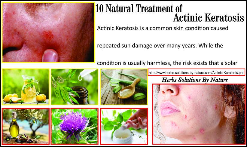 Natural-Treatment-of-Actinic-Keratosis