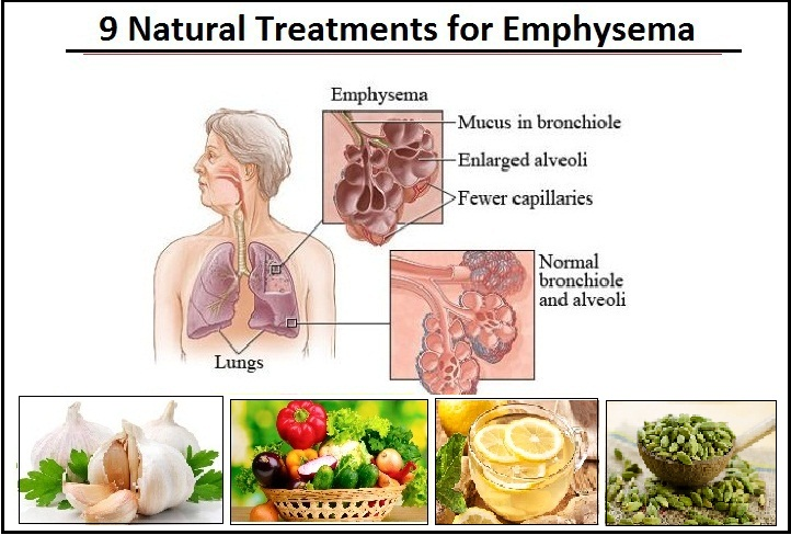 Natural- Treatments-for-Emphysema.