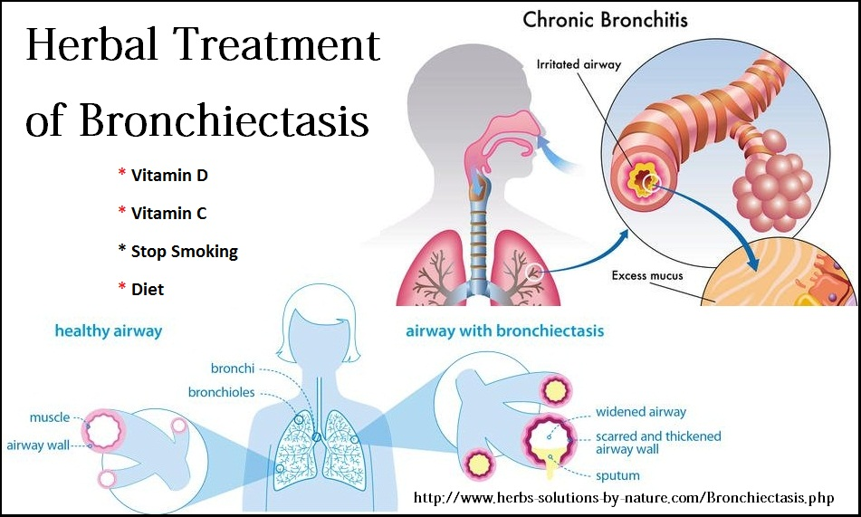 Herbal-Treatment-for-Bronchiectasis