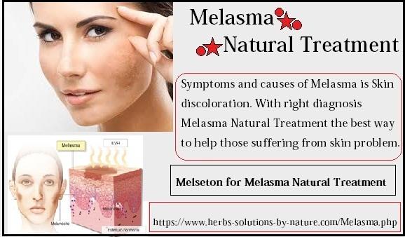 Melasma Natural Treatment