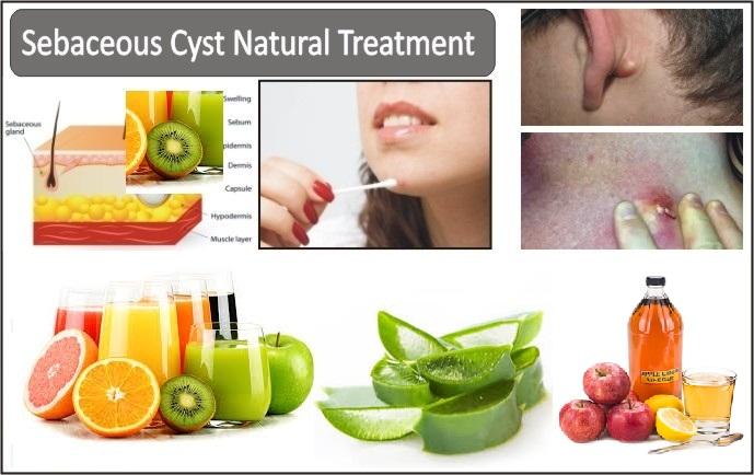 Sebaceous-Cyst-Natural-Treatment,