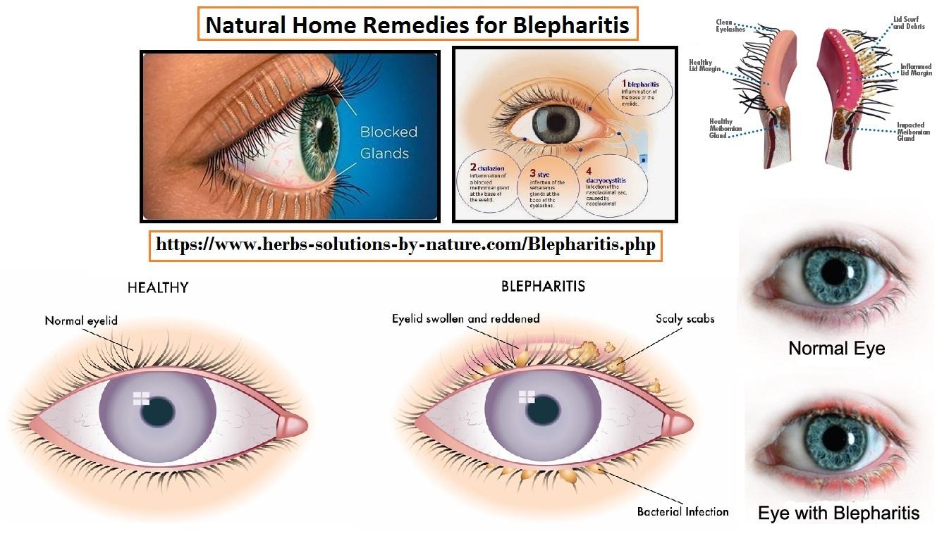 Blepharitis-Natural-Treatment