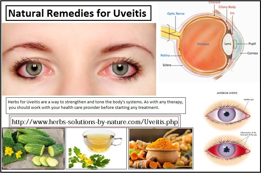 Natural-Remedies-for-Uveitis