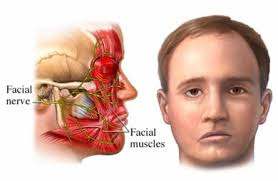 Natural-Treatment-for-Bell's-Palsy