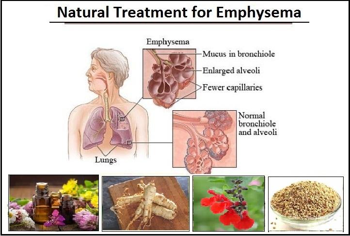 Natural-Treatment-for-Emphysema