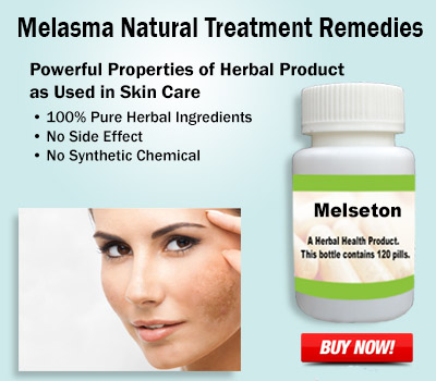 Natural-Treatment-for-Melasma