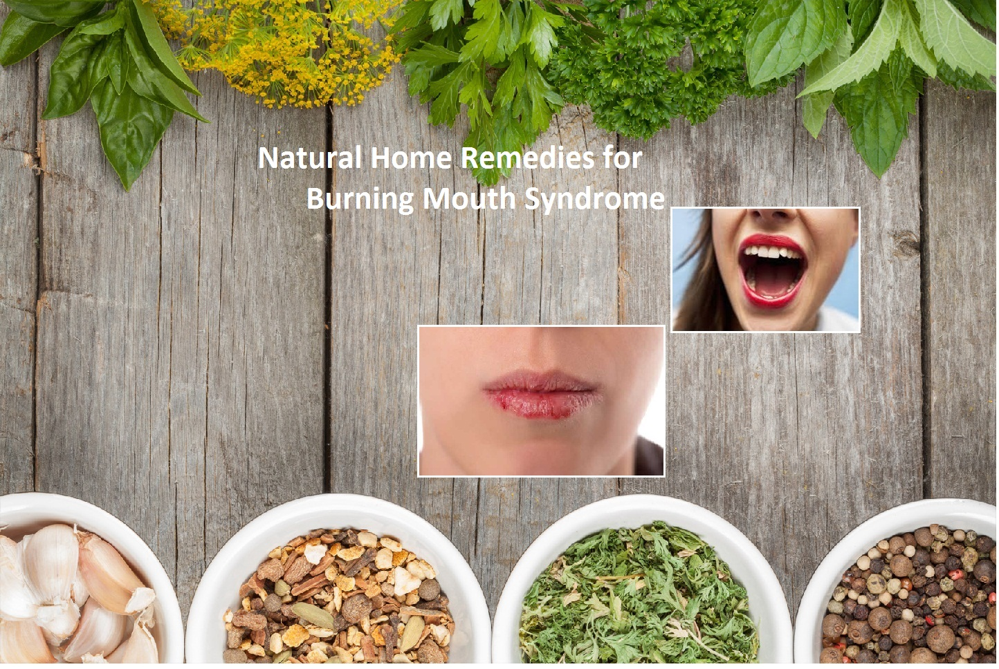 Natural-Home-Remedies-for-Burning-Mouth-Syndrome
