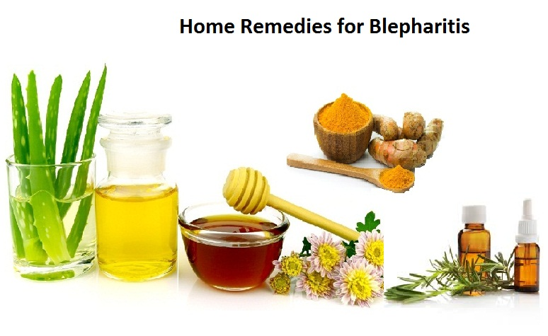Home-Remedies-for-Blepharitis