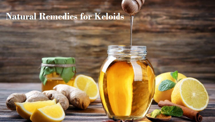 Natural-Remedies-for-Keloids